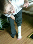 Mason shows off his new plaster cast.
